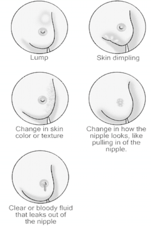 Really. Breast clear discharge in lump nipple soft really. join