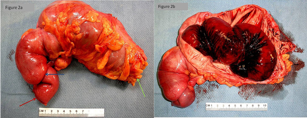 Adult Intussusception A Continuously Unveiling Clinical