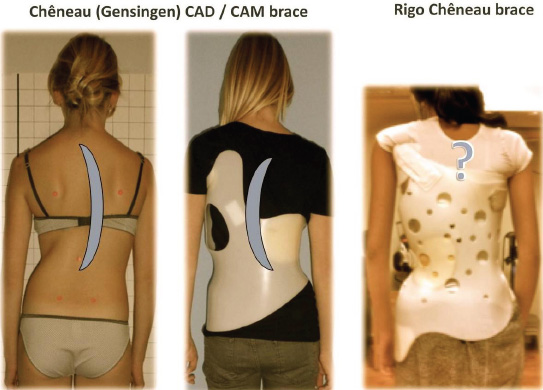 Bracing Scoliosis The Evolution To Cad Cam For Improved