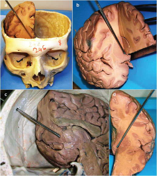 Approaches and landmarks for nucleus accumbens area: review of the ...