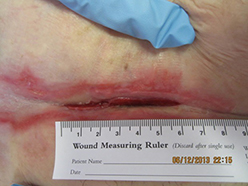 Complex wounds treated with MatriStem xenograft material